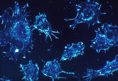 A CURE FOR CANCER? ISRAELI SCIENTISTS SAY THEY THINK THEY FOUND ONE